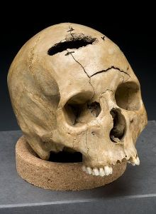 """Civil War Collection, National Museum of Health and Medicine, Armed Forces Institute of Pathology, Washington, D.C. From exhibition """"Visible Proofs: Forensic Views of the Body"""" U.S. National Library of Medicine, 8600 Rockville Pike, Bethesda, MD 20894"""